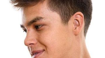 Opération chirurgie esthétique visage 5