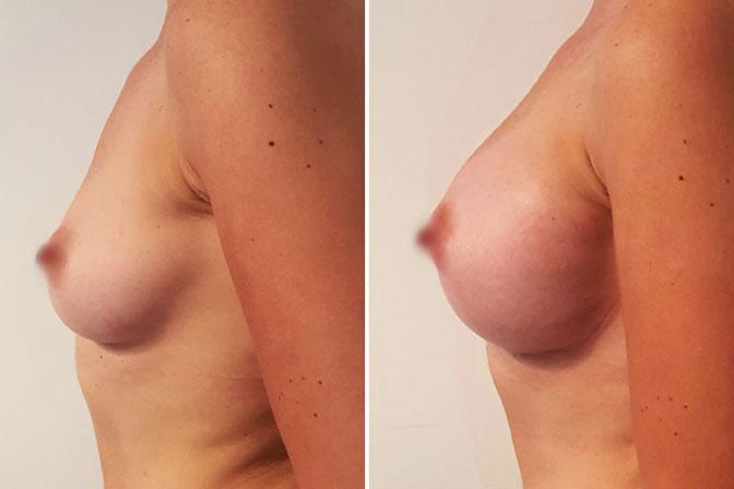Tarifs chirurgie esthétique 1